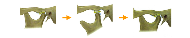 正常顎関節の図