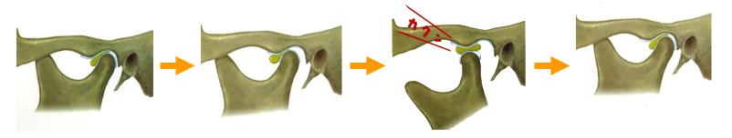 関節円盤前方転位の図
