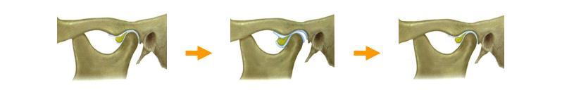 関節円盤の変形症の図
